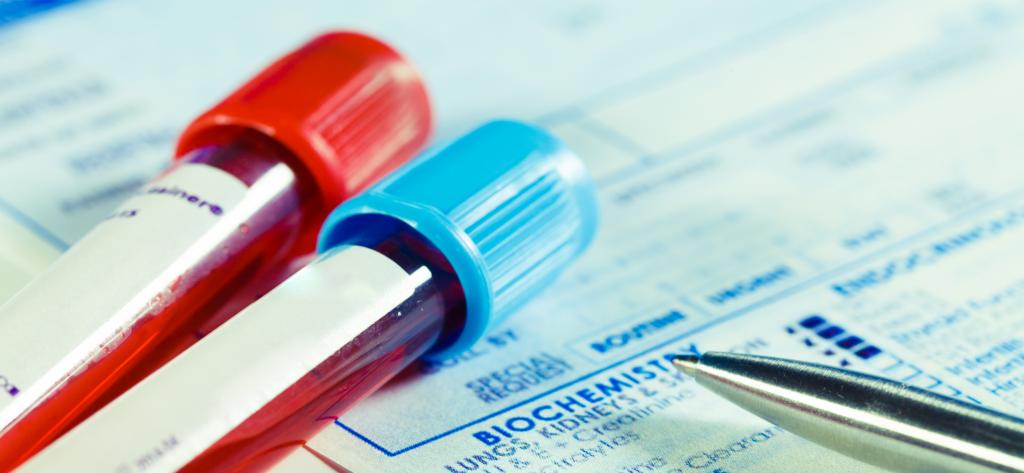 morfologia krwi - probówki z krwią położone na wynikach badań